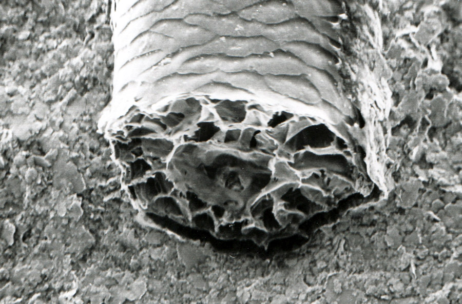 klipspringer hair Electron microscope